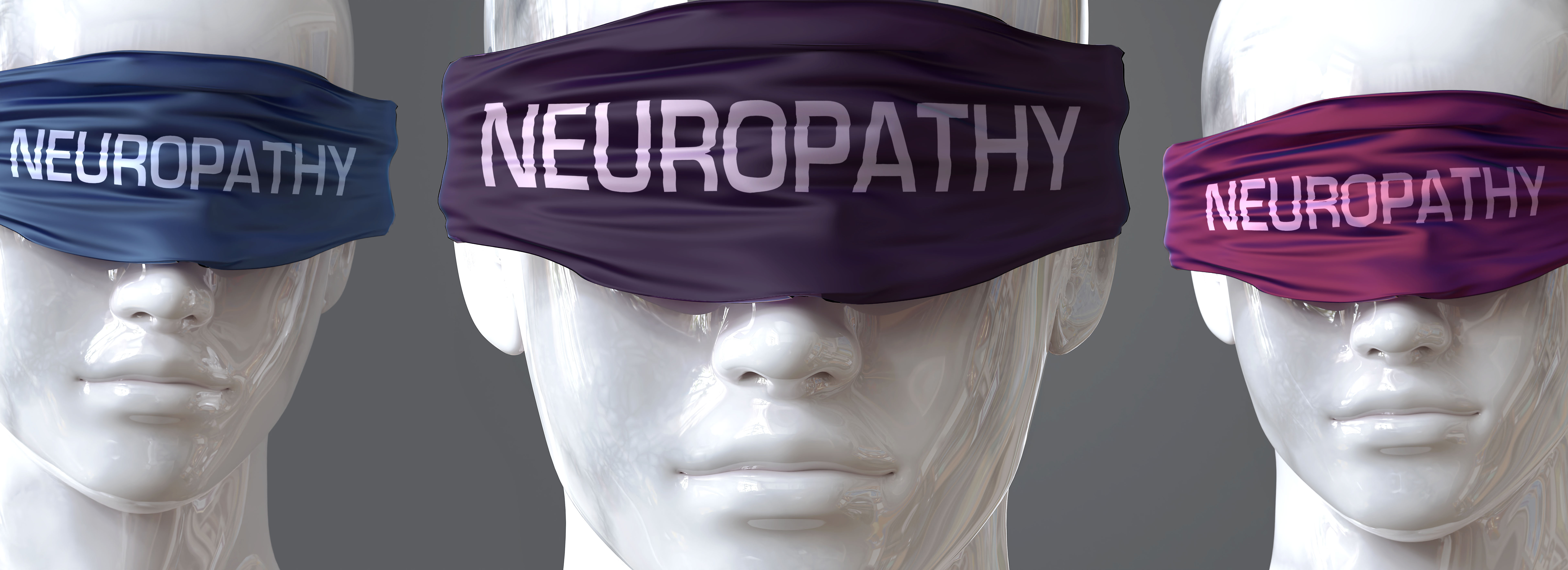 Median nerve entrapment syndrome